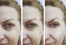 Woman wrinkles correction lifting results contrast results before and after treatments arrow. Woman wrinkles correction before and after treatments arrow stock photos