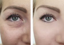 Woman wrinkles before and after correction removal treatment procedures. Woman wrinkles before  after removal procedures treatment royalty free stock image