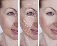 Woman wrinkles correction contrast results before and after treatments arrow. Woman wrinkles correction before and after treatments arrow procedure results royalty free stock images