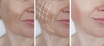 Woman wrinkles cosmetology difference lift dermatology beautician removal before and after procedures, arrow. Woman face wrinkles correction before and after stock image