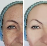 Woman wrinkles before and after cosmetology therapy, ageing procedure biorevitalization treatments. Woman wrinkles before and after treatments therapy royalty free stock photography
