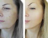 Woman wrinkles face difference before and after aging concept royalty free stock photos