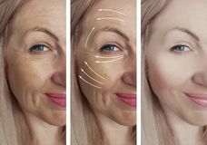 Woman wrinkles face beautician arrow lift regeneration before and after difference correction patient treatment royalty free stock photography