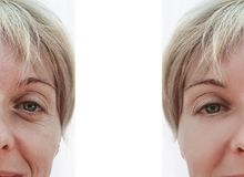 Woman wrinkles on face, contrast before and after procedures collage. Woman wrinkles on face, before and after procedures collage contrast royalty free stock photos