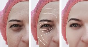 Woman wrinkles face before and after difference cosmetology therapy correction, arrow stock photos
