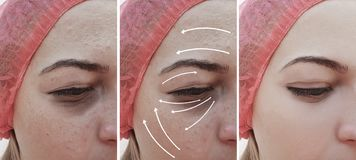 Woman wrinkles face before and after therapy correction, arrow stock photo