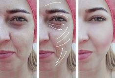 Woman wrinkles face before and after difference therapy correction, arrow stock image