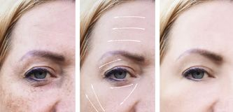 Woman wrinkles face crease pigmentation therapy difference before and after procedures effect. Woman crease wrinkles face before and after procedures effect royalty free stock image