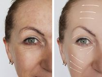 Woman wrinkles face before and after dermatology health lifting contrast procedures regeneration. Woman wrinkles face before and after procedures dermatology royalty free stock photos