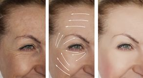 Woman wrinkles face before and after lifting contrast procedures regeneration procedure. Woman wrinkles face before and after procedures dermatology regeneration royalty free stock image