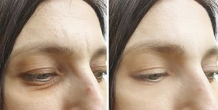Woman wrinkles face before after collage effect treatment tightening procedures. Woman    wrinkles face  and after procedures tightening treatment collage effect royalty free stock photography