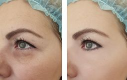 Woman wrinkles before and after lifting rejuvenation mature correction removal treatment procedures. Woman wrinkles before  after removal procedures treatment stock images