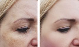 Woman wrinkles pigmentation dermatology face health before and after procedures. Woman wrinkles pigmentation face before and after procedures removal health stock photos