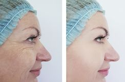 Woman wrinkles before and after treatment  anti, aging  procedures. Woman wrinkles before and after procedures treatment anti, aging royalty free stock photography
