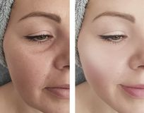 Woman wrinkles before and after removal treatment procedures. Woman wrinkles before  after removal procedures treatment royalty free stock photography