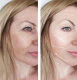 Woman wrinkles skin treatment before and after correction dermatology procedures regeneration. Woman wrinkles skin before and after procedures dermatology stock photos