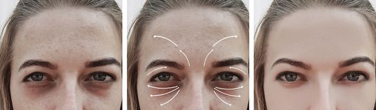 Woman wrinkles swollen effect biorevitalization face before and after procedures, correction stock images