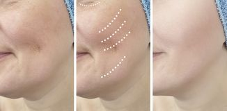 Woman wrinkles before and after treatment  mature  results  revitalization dermatology removal problem. Woman wrinkles before and after treatment regeneration royalty free stock photography