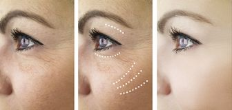 Woman wrinkles before and after treatment  revitalization dermatology removal problem. Woman wrinkles before and after treatment regeneration removal dermatology stock photos