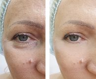 Woman wrinkles before and after contrast treatments. Woman wrinkles before and after treatments contrast royalty free stock photography