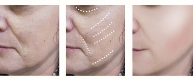 Woman wrinkles before and after cosmetology treatment surgeon rejuvenation treatments crease. Woman wrinkles before and after treatments rejuvenation surgeon royalty free stock photos