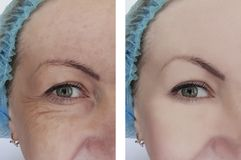 Woman wrinkles before and after removal correction cosmetology therapy, ageing procedure biorevitalization treatments. Woman wrinkles before and after treatments stock image
