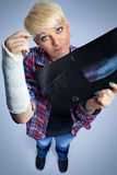 Woman with x-ray of her broken arm Stock Images