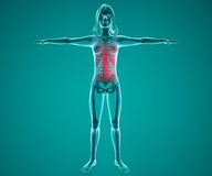 Woman x-ray with pain in the spine Stock Image