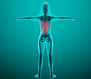 Woman x-ray with pain in the spine Stock Photography