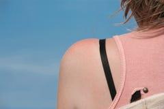 womans плеча Стоковые Фотографии RF