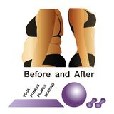 Womans body before and after fitness,yoga. Stock Photography