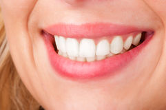 Womans Lips Smiling. Smiling womans mouth with great white teeths Stock Photography