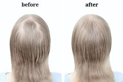 Women blond hair after using cosmetic powder to thicken hair. stock images