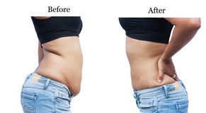 Women body fat belly between before and after Royalty Free Stock Image