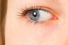 Women eye, close-up, blue, tear Stock Photos