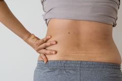 Women fat belly fat with stretch marks. On white background stock photo