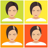 Women hair loss stages Royalty Free Stock Photo