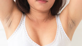Women problem black armpit on white background for skin care and Stock Photos