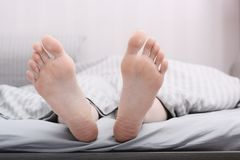 Women`s dry cracked feet, heels in bed. Skin care Stock Photo