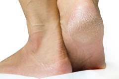 Women's heel feet dry Stock Photo