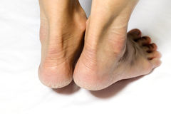 Women's heel feet dry Royalty Free Stock Photography