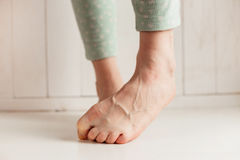 Women`s tired ankles with clasped fingers and bulging veins close-up on a light background. Stock Photo