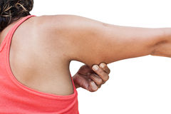 Women show fat and scratch mark , wrinkle of armpit Stock Image