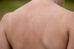 Women with skin pigmentation on back Stock Photos