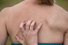 Women with skin pigmentation on back Stock Photography