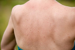 Women with skin pigmentation on back Royalty Free Stock Images