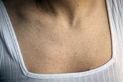 Women with skin pigmentation and lot of birthmarks Stock Image