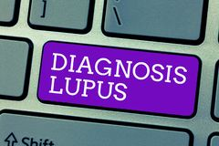 Word writing text Diagnosis Lupus. Business concept for Urine examination show an increase of protein level.  stock images
