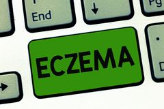 Word writing text Eczema. Business concept for Skin condition marked by itchy and inflamed patches Atopic dermatitis royalty free stock images