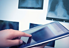 Working with digital tablet in radiology Stock Image